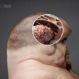 Projekt Graham: mozak